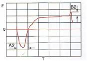 Fig.2 Weltting Curve2 Sn-3.5Ag 240℃
